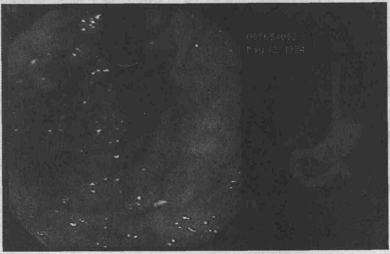 Миксосаркома фото