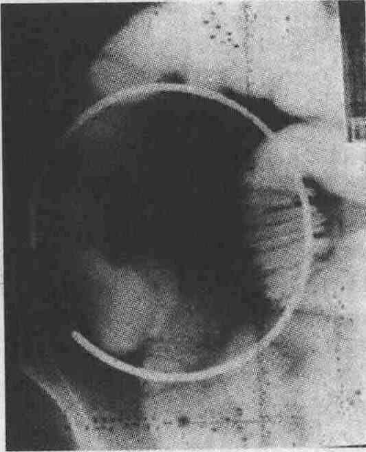 Злокачественные опухоли тонкой кишки фото