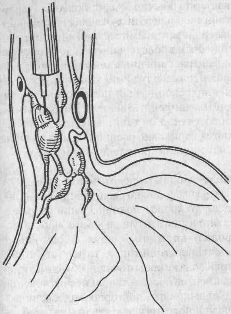 Варикоз вылечить без операции