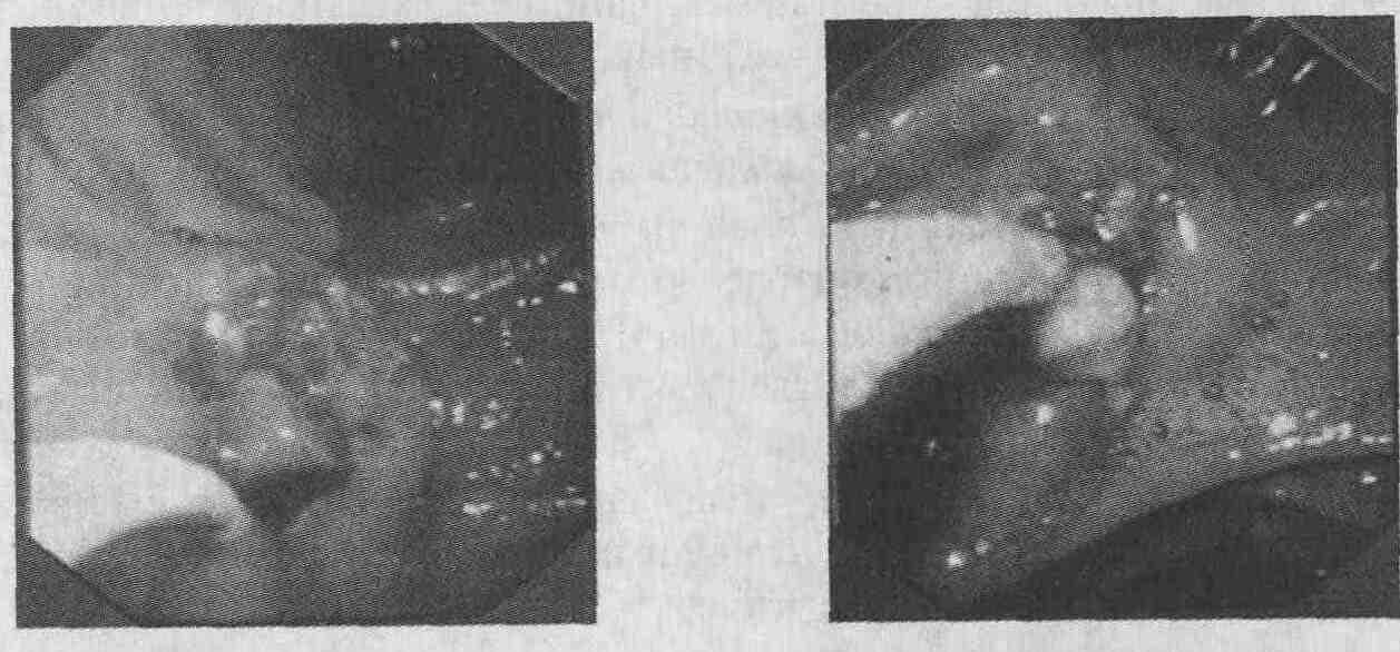 Болит Вена после снятия катетера - Littleone