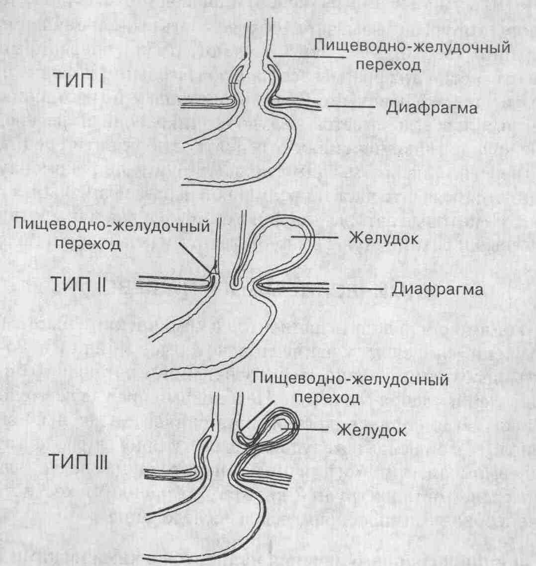 Эзофаготомия фото