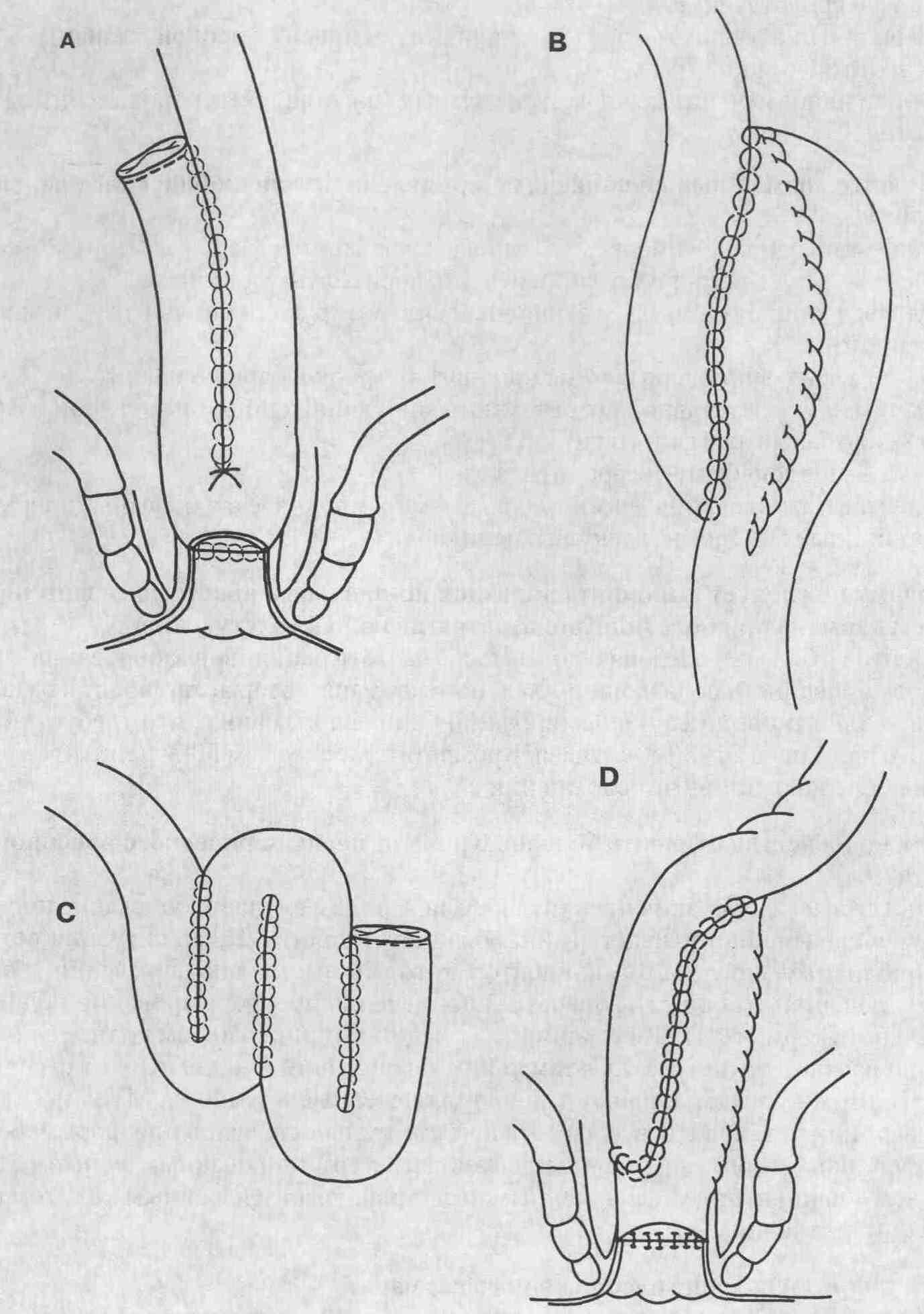 Анастомоз Илеоректальный фото